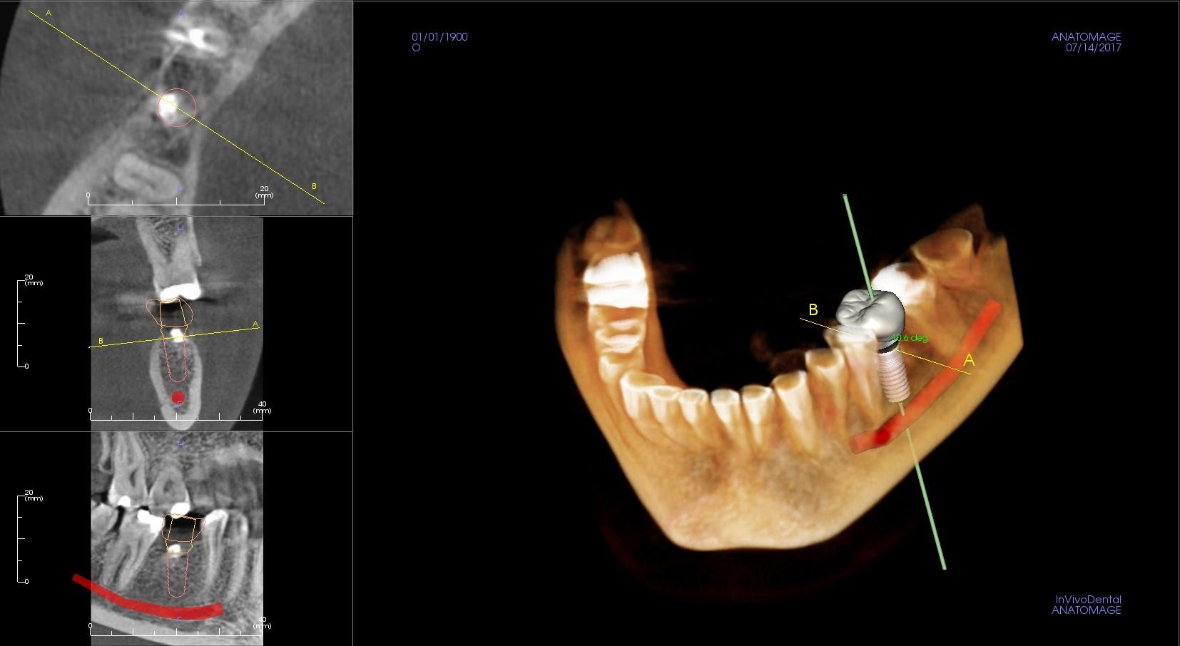 Plánování zubního implantátu pomocí 3D zobrazení